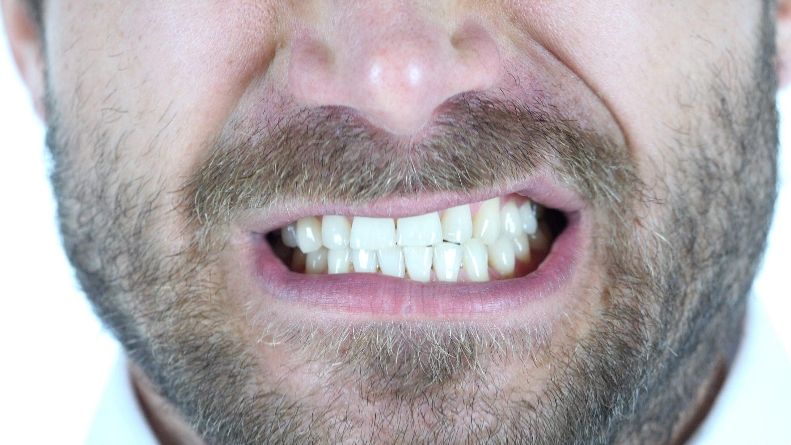 Dentiste_Beauport_Bruxisme_traitement