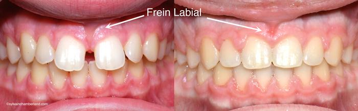 Diasteme-ferme-sans-frenectomie-Chamberland-Orthodontiste-a-Quebec