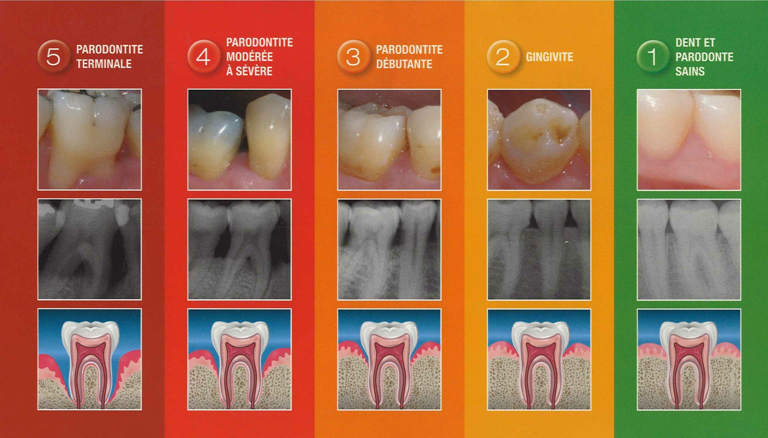parodontales